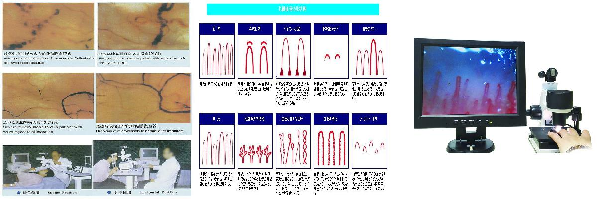tasly microcirculation test