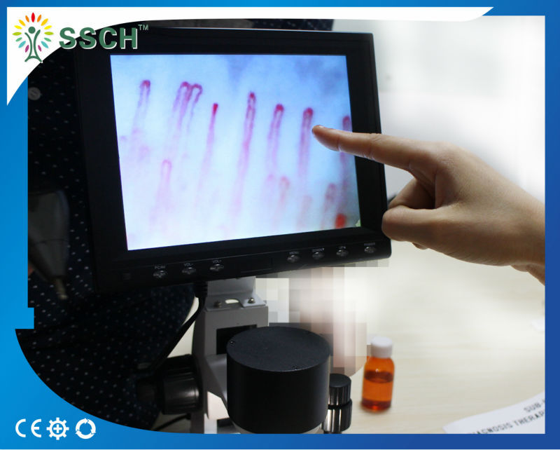 xw880 health nail fold capillary checking microscope with CE