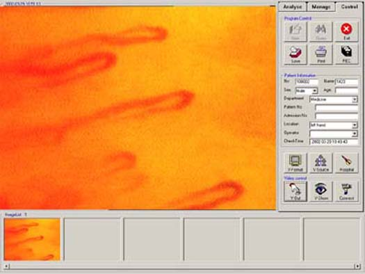 Microcirculation Microscope software