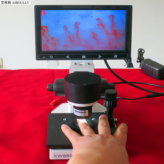 microcirculation diagnosis microscope