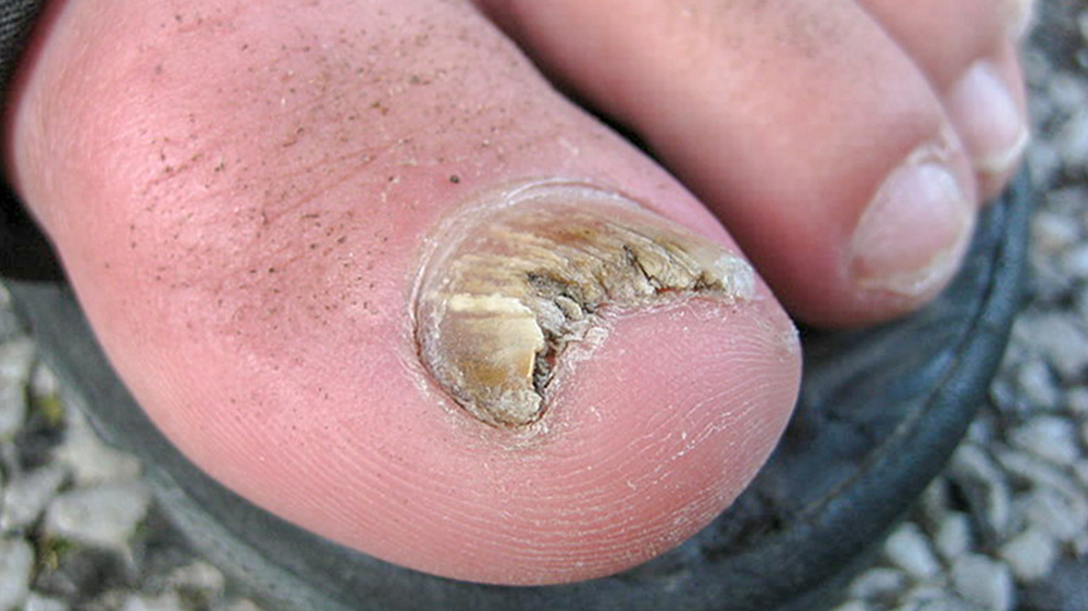 fungal nail under microscope