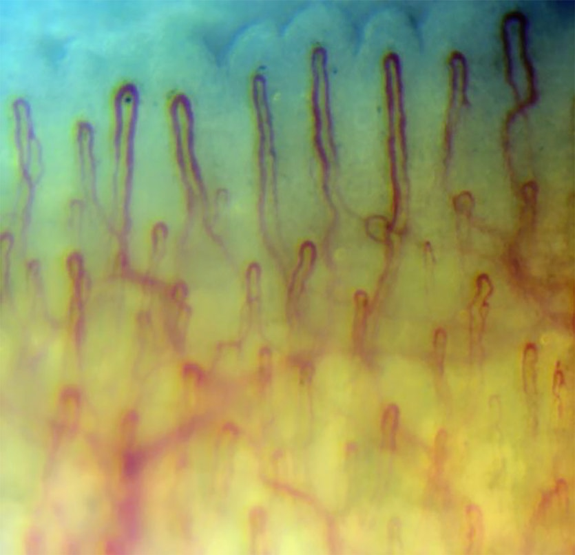nail in the microscope